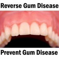 Is Gum Disease Reversible?