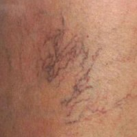 How can you Prevent Spider Veins?
