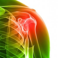 How to Cure Arthritis, Natural Approaches